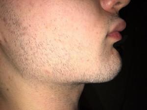 Борода в 16 лет